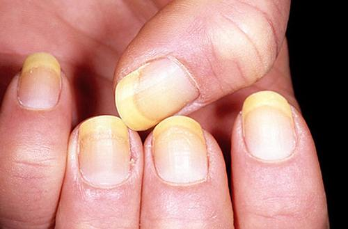 Cách chữa nấm móng tay hiệu quả nhanh nhất