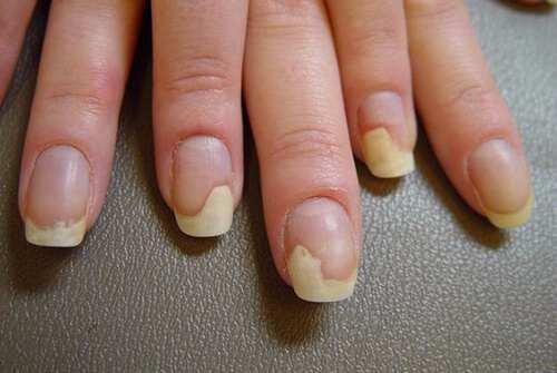 cách chữa nấm móng tay