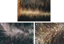 bệnh nấm da đầu