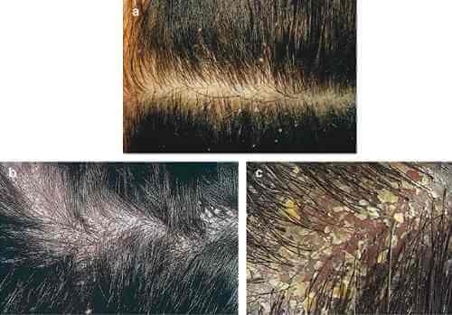 Bệnh nấm da đầu là gì và nguyên nhân vì sao bị nấm da đầu