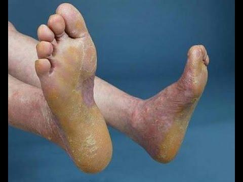 Bệnh vảy nến ở chân