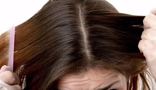 bệnh nấm da đầu có lây không