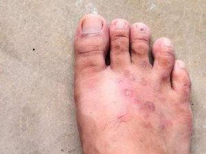 cách chữa nấm chân