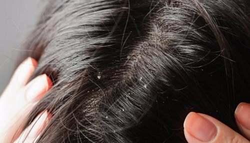 Nấm tóc và cách điều trị bệnh nấm tóc