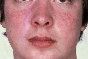 bệnh chàm thể tạng là gì