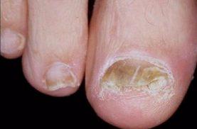 bệnh nấm kẽ móng chân tay