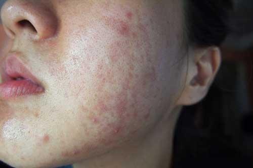 cách chữa dị ứng da mặt tại nhà hiệu quả