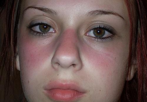 Cách chữa dị ứng da mặt tại nhà đem lại hiệu quả cao