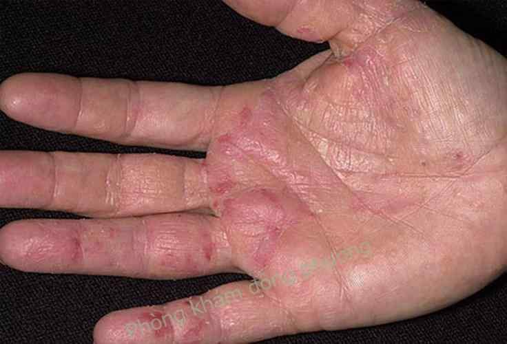 Cách chữa viêm da cơ địa ở tay hiệu quả