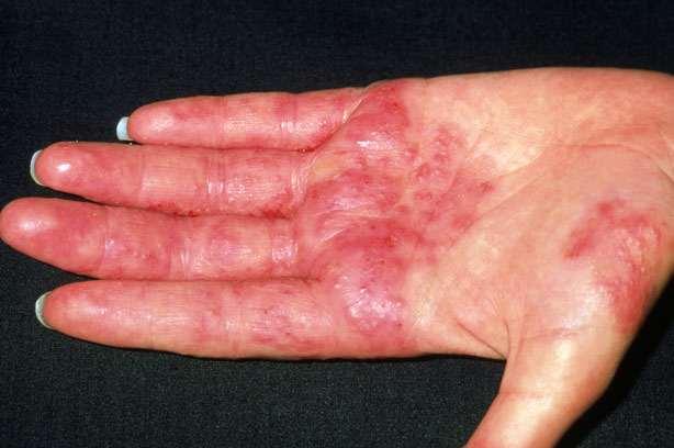 Cách chữa viêm da cơ địa ở tay hiệu quả triệt để