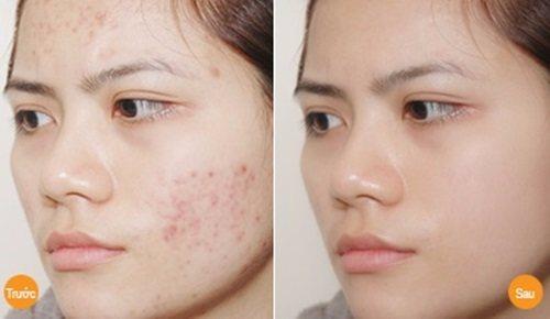 dị ứng da mặt phải làm sao