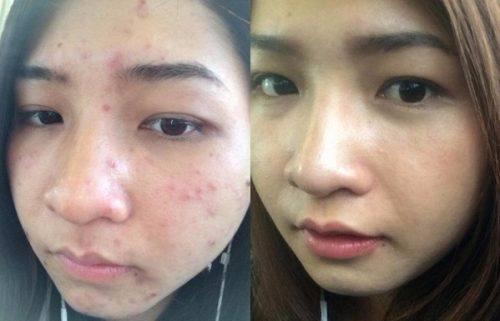 Dị ứng da mặt phải làm sao khỏi