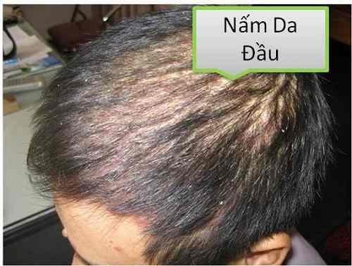 bị nấm da đầu có nên nhuộm tóc không