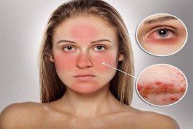 nấm da mặt và cách điều trị hiệu quả