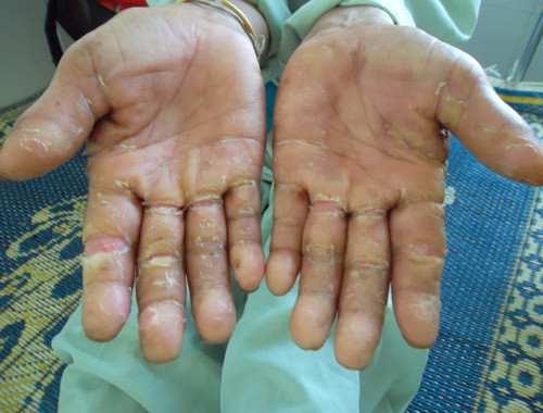 Viêm da cơ địa và dày sừng điều trị ở đâu