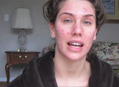 cách trị dị ứng da mặt đơn giản hiệu quả