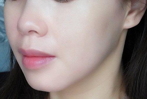 Cách trị dị ứng da mặt đơn giản hiệu quả nhất hiện nay