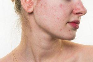 dị ứng ngứa da mặt