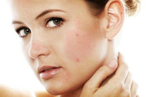 Dị ứng ngứa da mặt là gì và cách chữa dị ứng ngứa da mặt