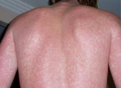 Ngứa toàn thân là dấu hiệu của bệnh gì