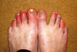 bệnh cước chân tay